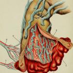 Léčba hemeroidů